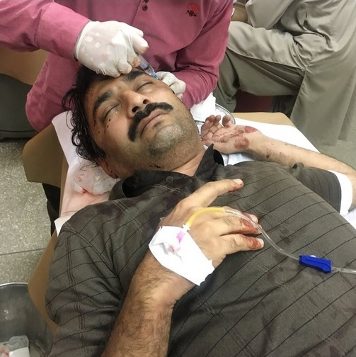 Journalist Ahmed Noorani attacked by knife-wielding assailants in Islamabad